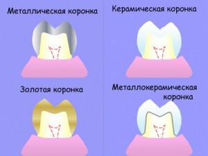 otkololsya_zub