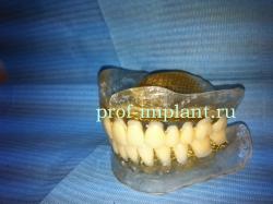 sdelat-zubnye-protezy-250x187