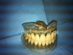 semnye-zubnye-protezy-250x187